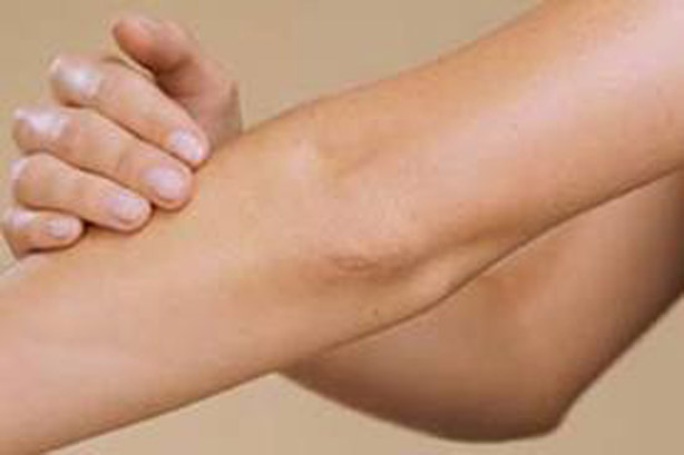 3 Natural Effective Ways to Get Rid of Dark Elbows & Knees at Home